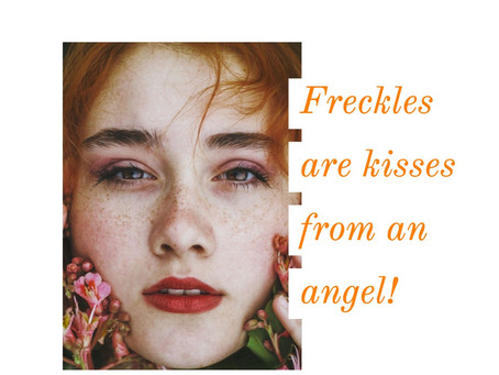 what are freckles all about ??..