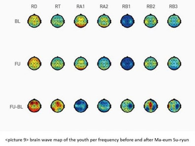 Altered Upper Alpha Brain Wave of Adolescents and Teachers