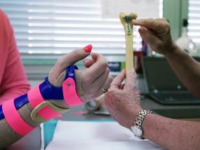 What are the differences between plaster, cast or plastic splints for broken bones?