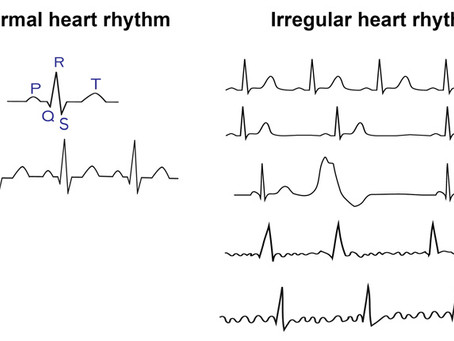 Getting ready for your Electrocardiogram (aka ECG or EKG)