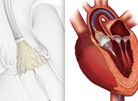 Getting ready before a Transcatheter Aortic Valve Replacement (TAVR)