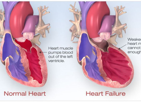 Learn about Heart Failure and treatments