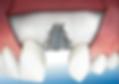 Zahnbehandlung unter Narkose - Zahnersatz Sopron Ungarn