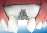 Oralchirurgie - Dr Peter Csipkay Sopron Ungarn