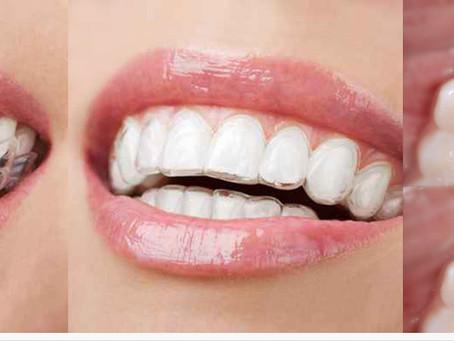 """Zahnregulierung im Erwachsenenalter - """"UNSICHTBARE"""" Techniken"""
