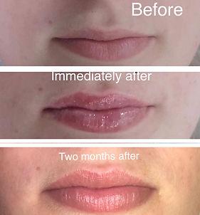 Hya Pen Lip Treatment