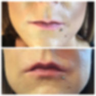 HyaPen Lip Treatment