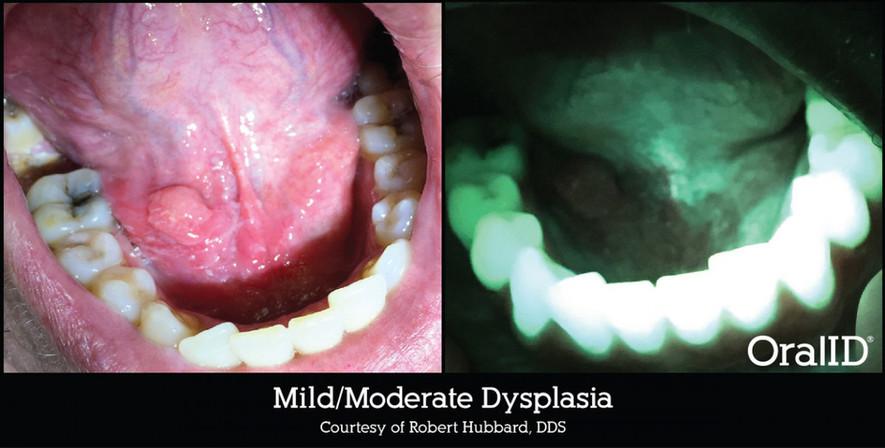mildmoderate-dysplasiargb-56138.jpg