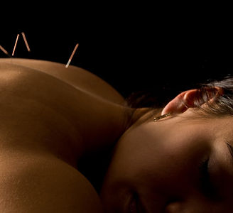 Acupunctur for pain and stress relief