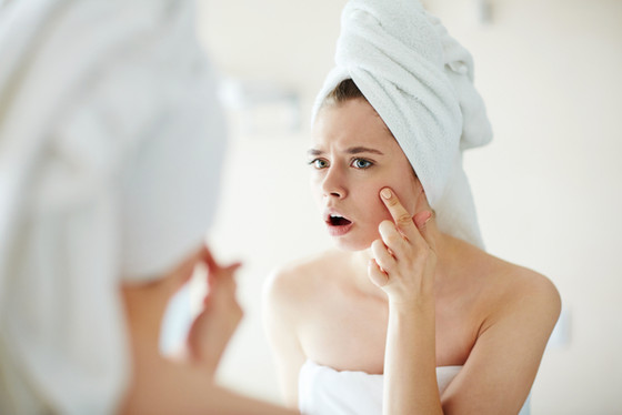 10 Reasons You Still Have Acne