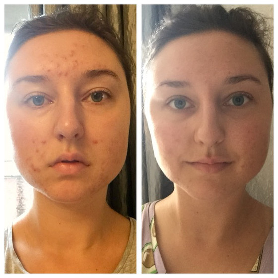 I Cleared My Cystic Acne In 7 Days By Eating Less Healthy