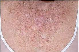 Voorstadium van huidkanker herkennen