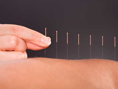 Is Acupuncture right for me?