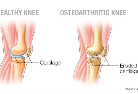 Exercise for Osteoarthritis!
