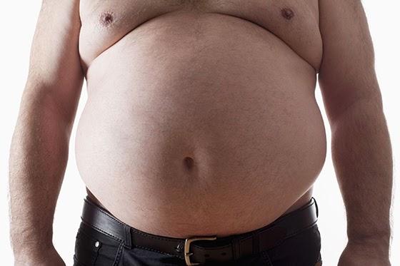 Obesidade Ab2