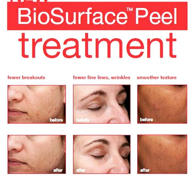 Fantastic Dermalogica bio surface peel now available in salon..