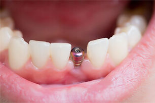 Dental-Implants-Services.jpg