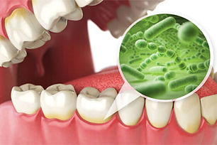 Osseous-Surgery-Periodontal-Services.jpg