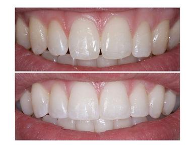 Composite Bonding Teeth Services Bethlehem PA