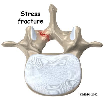 Spinal Stress Fractures in Athletes. Who's to blame?