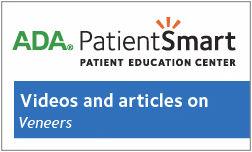 ADA Dental Education on Veneers