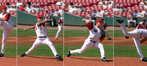 Deceleration Injuries in Baseball Pitchers