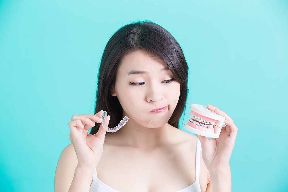 Choosing between Invisalign and braces