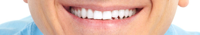 Invisalign Before and After picture