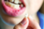 Tooth-Extractions-Youth-and-Adult.jpg