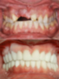 87494520-a-close-up-of-a-patient-s-mouth