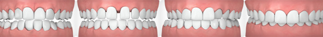 Gabbed Teeth, Crowded Teeth, Overbit, Underbite and Cross Bite