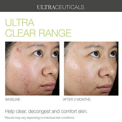 Ultra+Clear+Range+02+copy.jpg