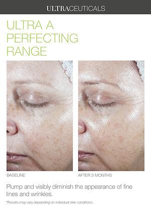Ultra+A+Perfecting+Range.jpg