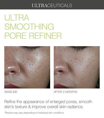 Ultra+Smoothing+Pore+Refiner+02.jpg