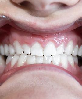 TeethAfter.jpg