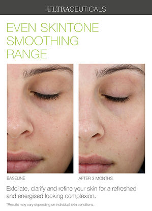 Even+Skintone+Smoothing+Range.jpg