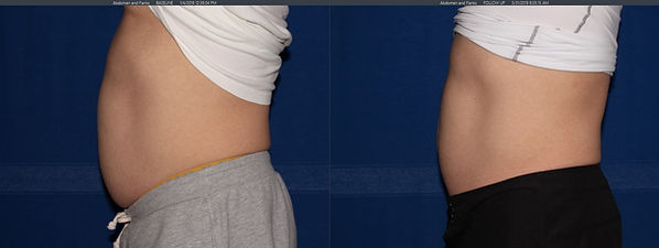 before and after coolsculpt male 3.jpg