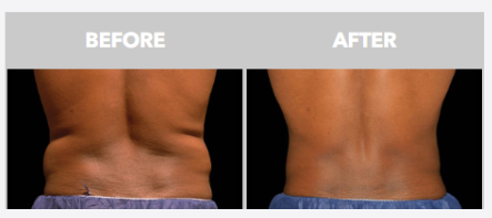 before and after coolsculpt male stomach abs