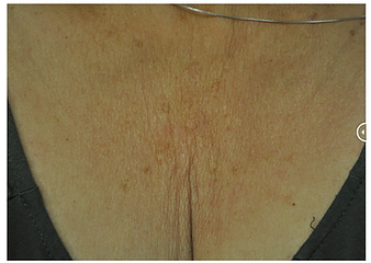 btl exilis clevage woman before.png