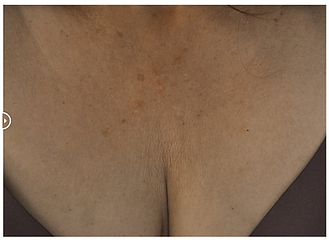 btl exilis clevage woman after.png
