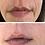 Thumbnail: Goodbye Wrinkles Mouth Mask