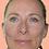 Thumbnail: Goodbye Wrinkles Eye Lift