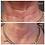 Thumbnail: Goodbye Wrinkles Neck Lift