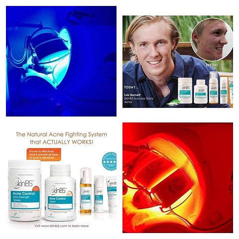 Skin Treatment.jpg