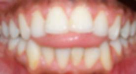 tongue thrust.jpg