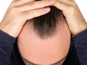 5 signs of hair health problems needing to be resolved!