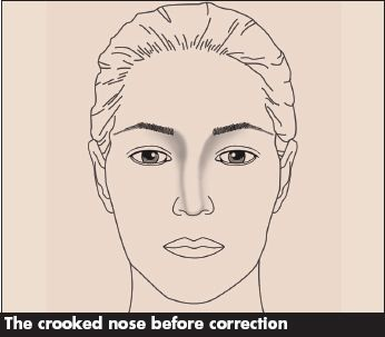 The Crooked Nose Contouring Makeup Blog