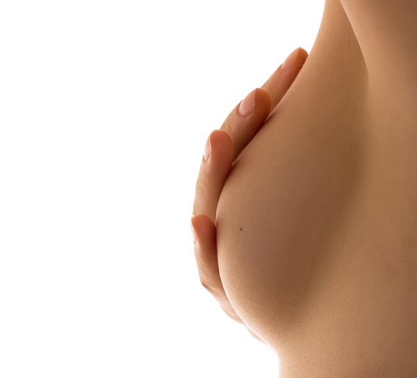 cambio forma areola, cirugia de pechos, cirugia mamaria, aumento de pechos, camb