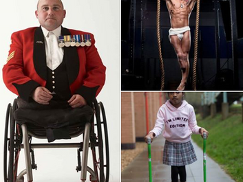 Those born disabled as less represented