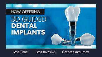 implant-banner.jpg